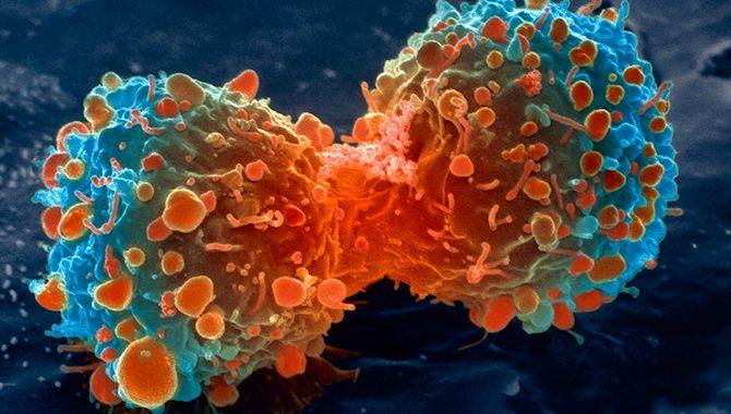 cancercelulas